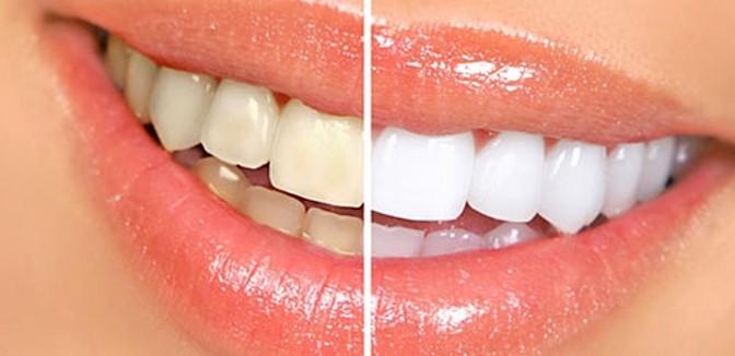 ilustrační obrázek ke slevové akci: Bělení zubů vč. odstranění zubního kamene ultrazvukem